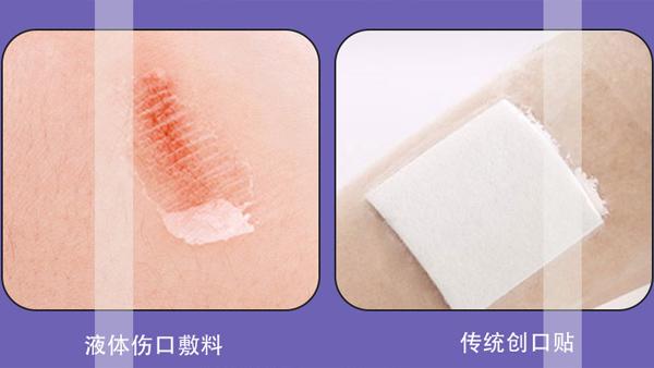 液体伤口敷料和传统伤口敷料有什么区别,效果真的那么好吗?