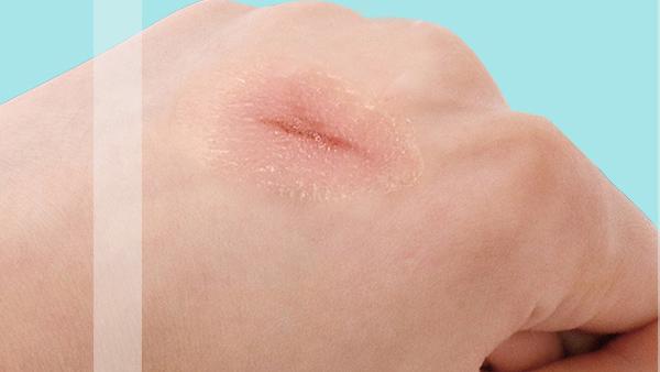承东生物-羧宁液体伤口敷料凭什么打败传统伤口敷料产品?